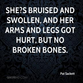 Pat Sackett  - She?s bruised and swollen, and her arms and legs got hurt, but no broken bones.