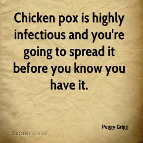 Peggy Grigg  - Chicken pox is highly infectious and you're going to spread it before you know you have it.