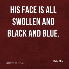 Dale Ellis - His face is all swollen and black and blue.