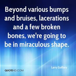 Larry Guillory  - Beyond various bumps and bruises, lacerations and a few broken bones, we're going to be in miraculous shape.