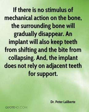 Dr. Peter Laliberte - If there is no stimulus of mechanical action on the bone, the surrounding bone will gradually disappear. An implant will also keep teeth from shifting and the bite from collapsing. And, the implant does not rely on adjacent teeth for support.