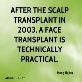 Hong Zhijian - After the scalp transplant in 2003, a face transplant is technically practical.