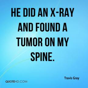 He did an X-ray and found a tumor on my spine.