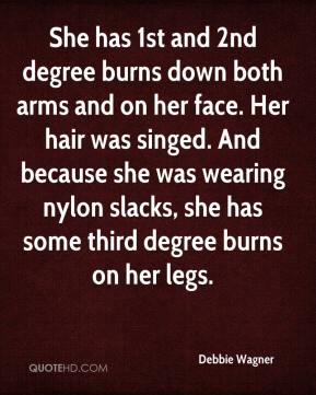 Debbie Wagner - She has 1st and 2nd degree burns down both arms and on her face. Her hair was singed. And because she was wearing nylon slacks, she has some third degree burns on her legs.