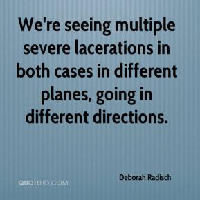 Deborah Radisch - We're seeing multiple severe lacerations in both cases in different planes, going in different directions.