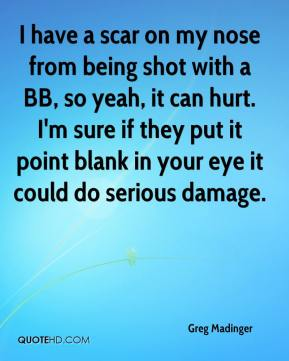 Greg Madinger - I have a scar on my nose from being shot with a BB, so yeah, it can hurt. I'm sure if they put it point blank in your eye it could do serious damage.
