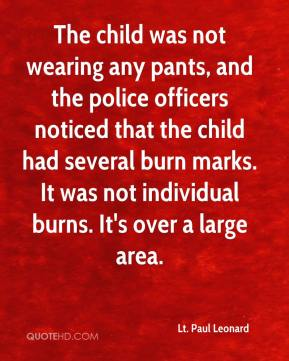 Lt. Paul Leonard  - The child was not wearing any pants, and the police officers noticed that the child had several burn marks. It was not individual burns. It's over a large area.