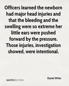 Daniel White - Officers learned the newborn had major head injuries and that the bleeding and the swelling were so extreme her little ears were pushed forward by the pressure. Those injuries, investigation showed, were intentional.