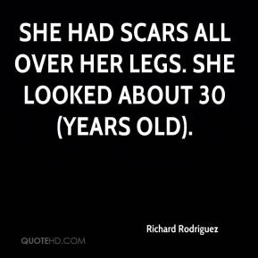 She had scars all over her legs. She looked about 30 (years old).
