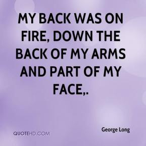 My back was on fire, down the back of my arms and part of my face.