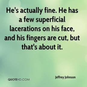 Jeffrey Johnson  - He's actually fine. He has a few superficial lacerations on his face, and his fingers are cut, but that's about it.