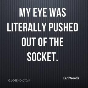 My eye was literally pushed out of the socket.