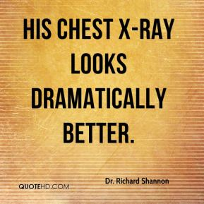 Dr. Richard Shannon - His chest X-ray looks dramatically better.