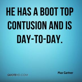 He has a boot top contusion and is day-to-day.