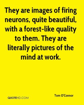 They are images of firing neurons, quite beautiful, with a forest-like quality to them. They are literally pictures of the mind at work.