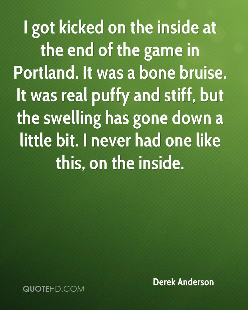I got kicked on the inside at the end of the game in Portland. It was a bone bruise. It was real puffy and stiff, but the swelling has gone down a little bit. I never had one like this, on the inside.