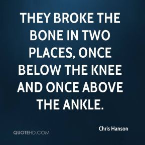 Chris Hanson - They broke the bone in two places, once below the knee and once above the ankle.