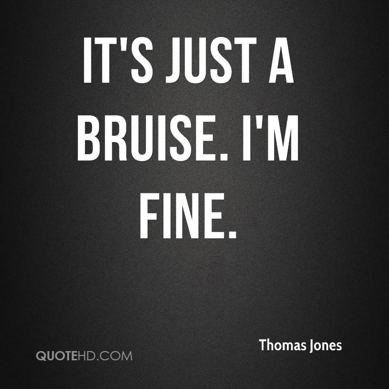 It's just a bruise. I'm fine.