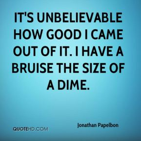 It's unbelievable how good I came out of it. I have a bruise the size of a dime.