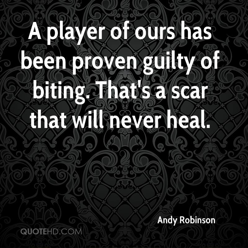 A player of ours has been proven guilty of biting. That's a scar that will never heal.