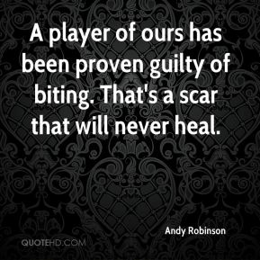Andy Robinson - A player of ours has been proven guilty of biting. That's a scar that will never heal.