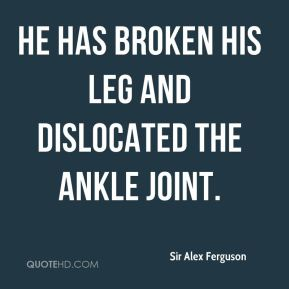 Sir Alex Ferguson  - He has broken his leg and dislocated the ankle joint.